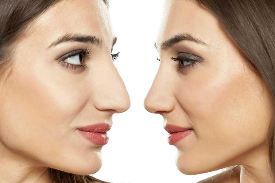 Что нос может рассказать о вашем характере? 2c3320ce628d36afcf0fdaf340453134